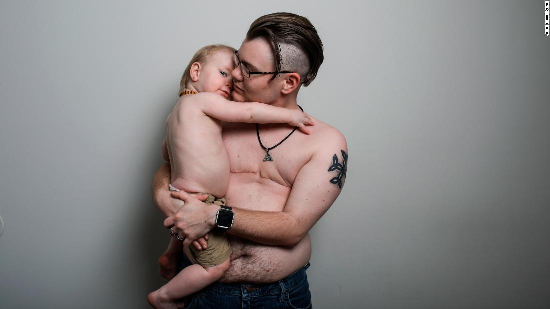 Hy hữu: Ông bố tự sinh con và cho con bú - 1