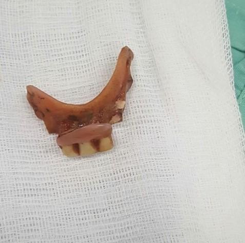 Uống thuốc nuốt luôn hàm răng giả mà không hề hay biết - 1