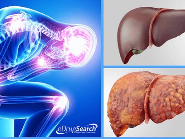 4 triệu chứng bệnh gan nhiễm mỡ không thể bỏ qua