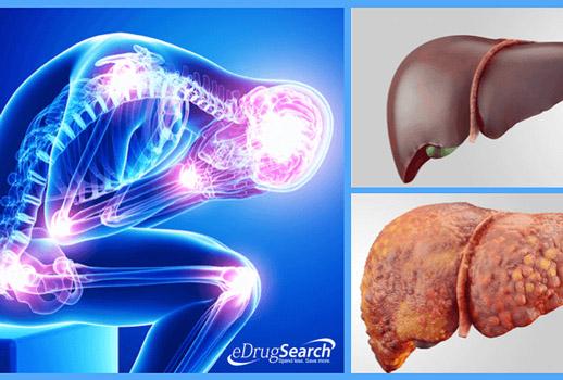4 triệu chứng bệnh gan nhiễm mỡ không thể bỏ qua - 1