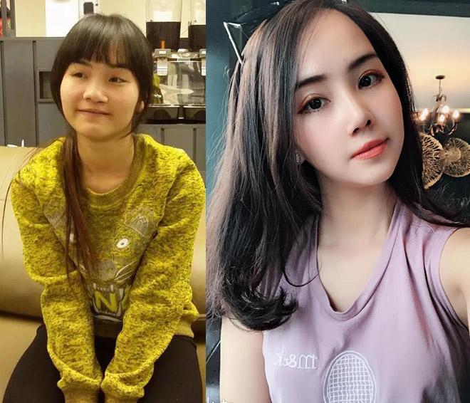 """9X Hà Nội cưới được lang quân như ý sau khi """"đập mặt xây lại"""" - 1"""