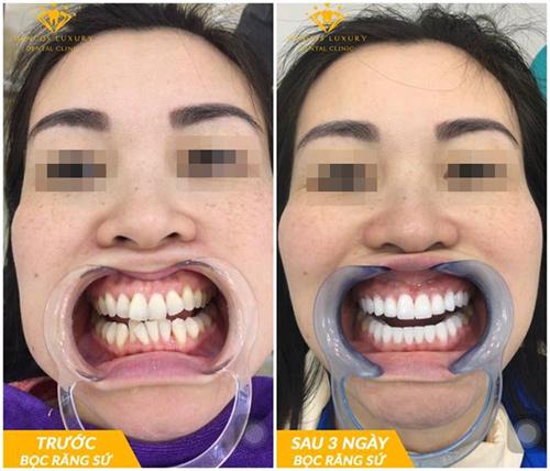 Bọc răng sứ thẩm mỹ: 'Lột xác' 180 độ, sở hữu nụ cười đẹp như mơ - 1