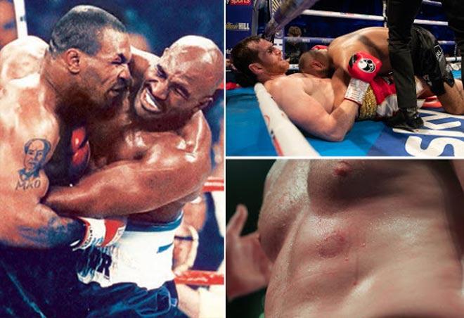 """""""Ác chiêu cắn"""" của Mike Tyson tái hiện sau 22 năm: Ôm hận thiên thu - 1"""