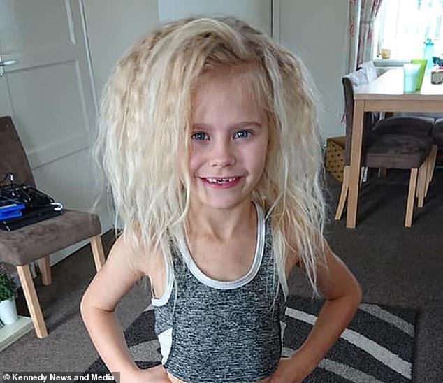 """Bệnh lạ hiếm gặp khiến cô bé 7 tuổi có mái tóc như """"búp bê troll"""" - 1"""