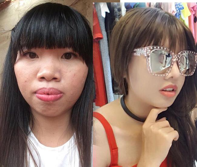 """Cô gái sinh năm 1996 - Quách Phượng từng gây xôn xao cộng đồng mạng khi chi hơn 150 triệu đồng phẫu thuật thẩm mỹ.Trước kia, cô tự ví mình là """"Thị Nở tái sinh"""" vì gương mặt có nhiều khuyết điểm, như mũi tẹt, cánh mũi bè, da ngăm, hàm hô, môi dày, da mụn..."""