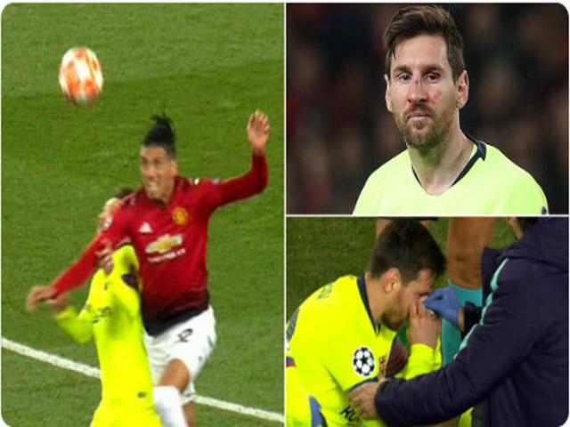 Messi đổ máu ở đại chiến MU - Barcelona cúp C1: Smalling không nói đùa