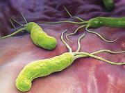 Tin tức sức khỏe - Vi khuẩn HP gây viêm loét dạ dày kháng thuốc – nguy hiểm nhưng vẫn có cách