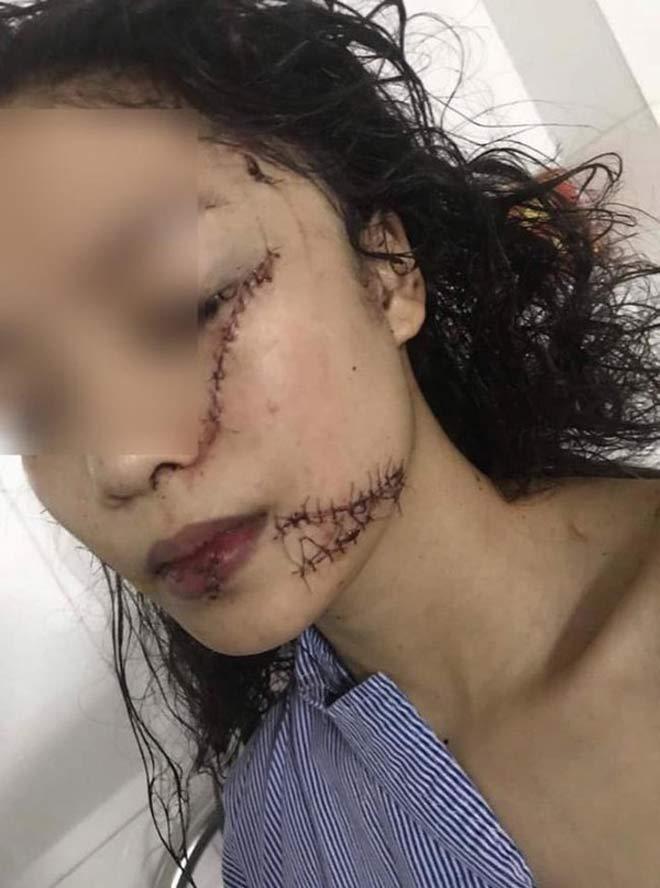 Thiếu nữ 18 tuổi bị rạch mặt chằng chịt vì mâu thuẫn từ 1 năm trước? - 1