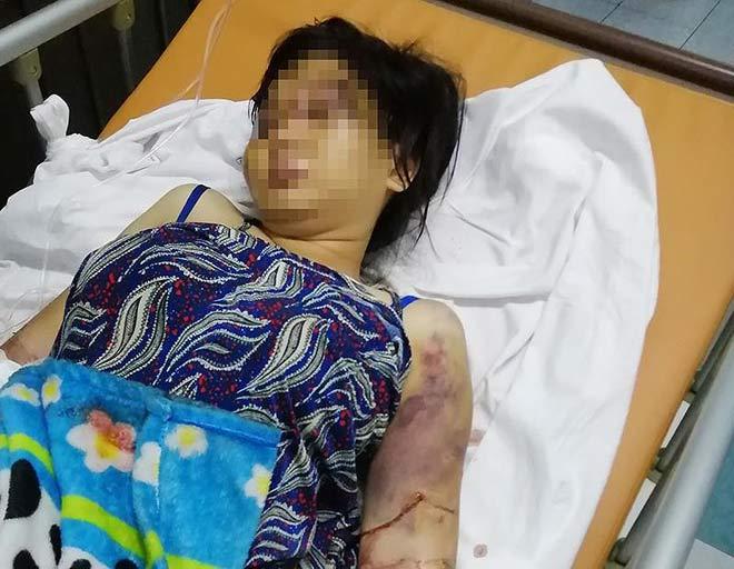 Bắt kẻ cầm đầu vụ tra tấn khiến cô gái 18 tuổi sẩy thai - 1
