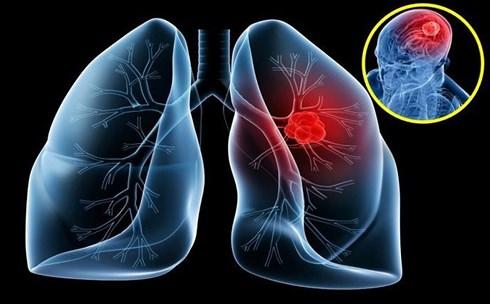 Thầy bói phán bị ung thư phổi phải cúng 100 triệu để đuổi vong - 1
