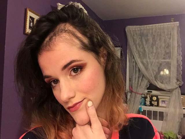 Căn bệnh lạ khiến cho cô gái không thể ngừng nhổ tóc 3 tiếng mỗi ngày