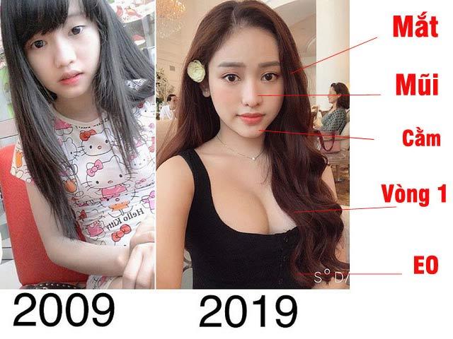 Lý do Thúy Vi, Vân Hugo và loạt mỹ nhân Việt phẫu thuật thẩm mỹ