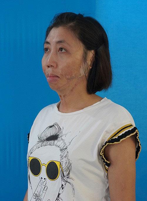 Phẫu thuật thành công cho bệnh nhân gần 30 năm sống chung với dị tật - 1
