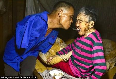 Con không tay dùng miệng bón thức ăn cho mẹ 91 tuổi gây xúc động - 1