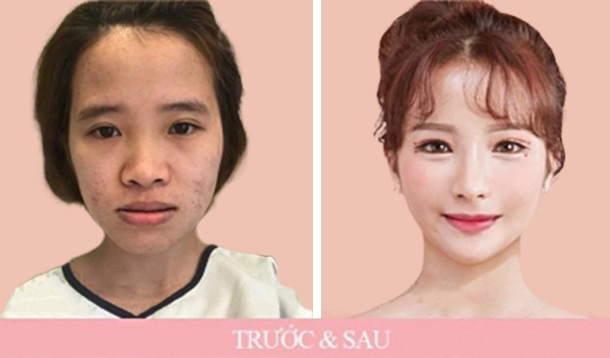 """Cô gái Việt """"tái sinh"""", đẹp như búp bê: Chê bai ngoại hình là con dao bén nhất - 1"""