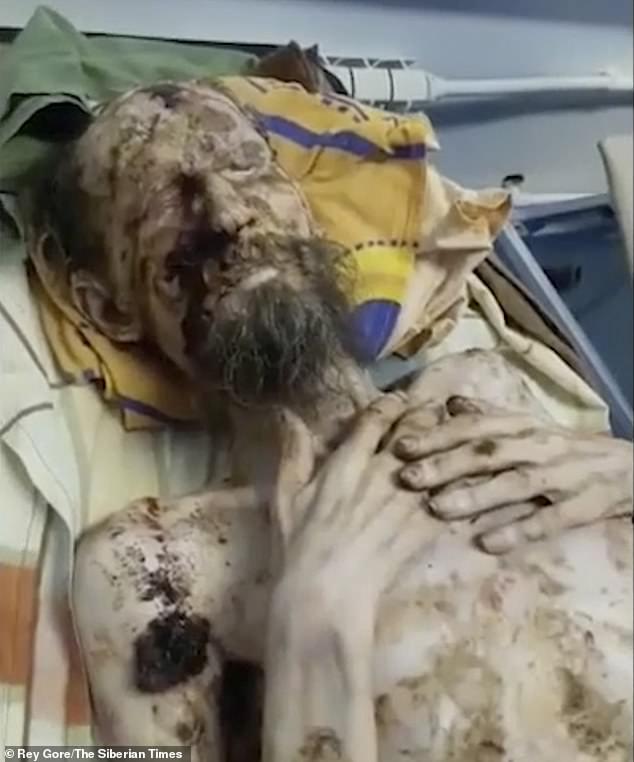 Nga: Người đàn ông trông như xác ướp, bị gấu nhốt trong hang cả tháng làm thức ăn? - 1