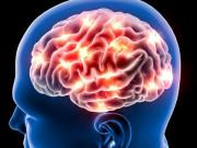 Tin tức sức khỏe - Thiếu máu não, đau đầu, mất ngủ mãn tính không đỡ: Vì mắc 2 sai lầm nghiêm trọng này mà không biết!