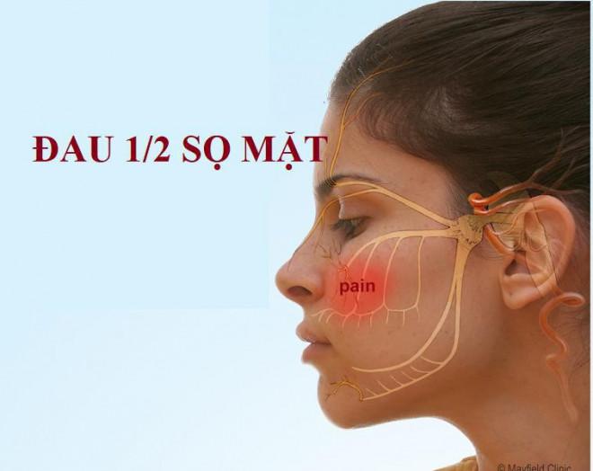 Những hậu quả khó lường khi bị đau nhức ở tai, gáy, trán, mặt nhưng nhiều người lại chủ quan cho qua - 1