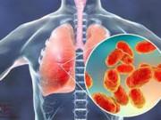 Tin tức sức khỏe - Bệnh nhân đờm, ho, thó thở, hen suyễn mùa dịch không được coi thường