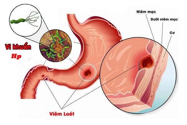 Bệnh đau dạ dày có thể lây qua những thói quen nào? - 1