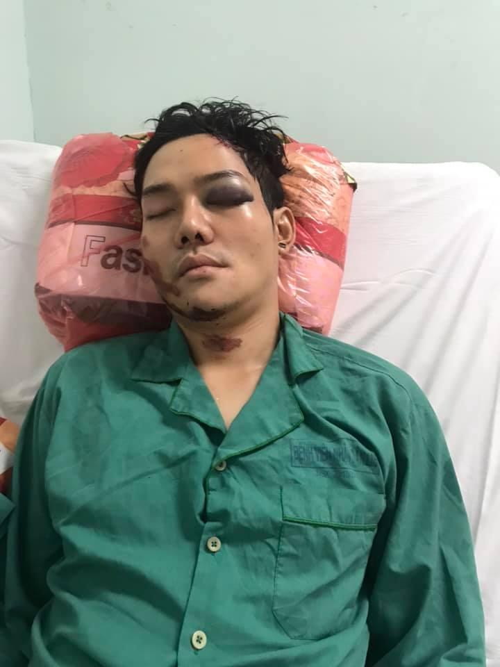 Con trai nuôi Hoài Linh bị tai nạn chấn thương sọ não, gãy xương hàm - 1