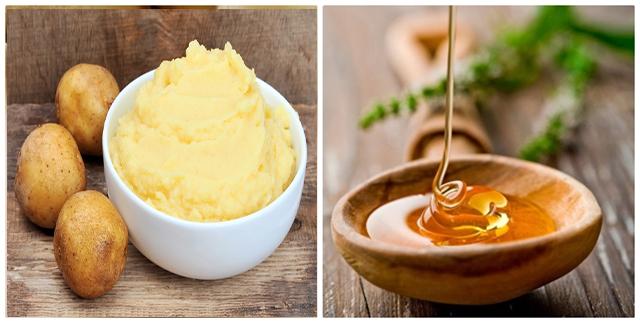 10 cách làm mặt nạ khoai tây giúp trị mụn, nám và dưỡng da trắng sáng hiệu quả - 3