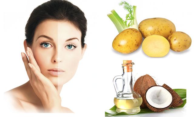 10 cách làm mặt nạ khoai tây giúp trị mụn, nám và dưỡng da trắng sáng hiệu quả - 8