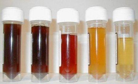 Màu sắc nước tiểu có thể cảnh báo vấn đề ở thận và tăng huyết áp - 1
