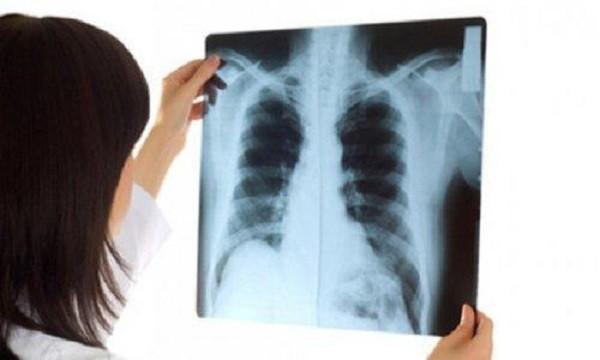 """Thói quen không ngờ """"giết chết"""" phổi, nhiều người Việt làm hằng ngày - 1"""