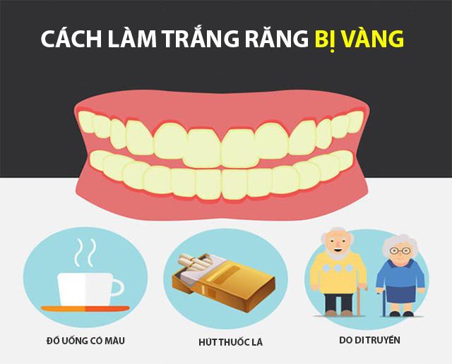 Cách làm trắng răng bị vàng tại nhà an toàn hiệu quả nhanh nhất - 1