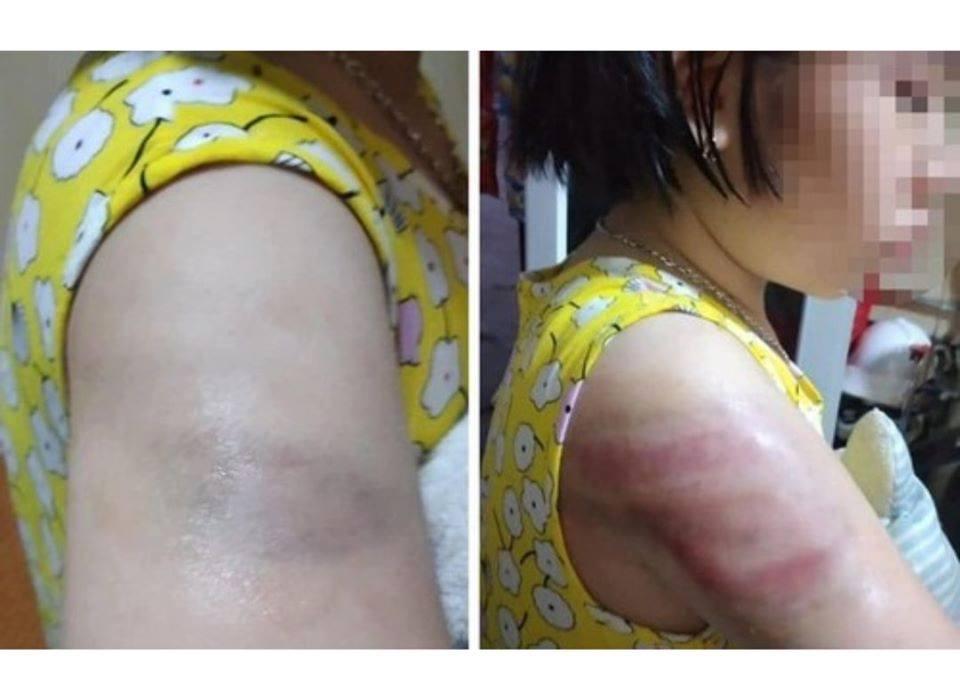 Học sinh lớp 4 bị cô giáo đánh bầm tím tay vì viết bài chậm - 1