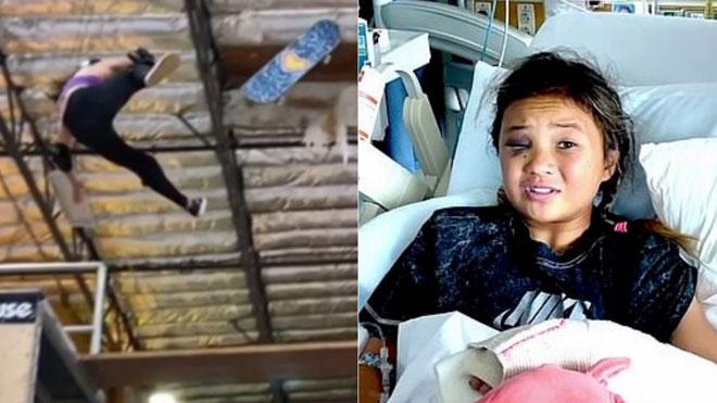 Nữ VĐV 11 tuổi rơi tự do ở độ cao 4m, chấn thương đáng sợ - 1