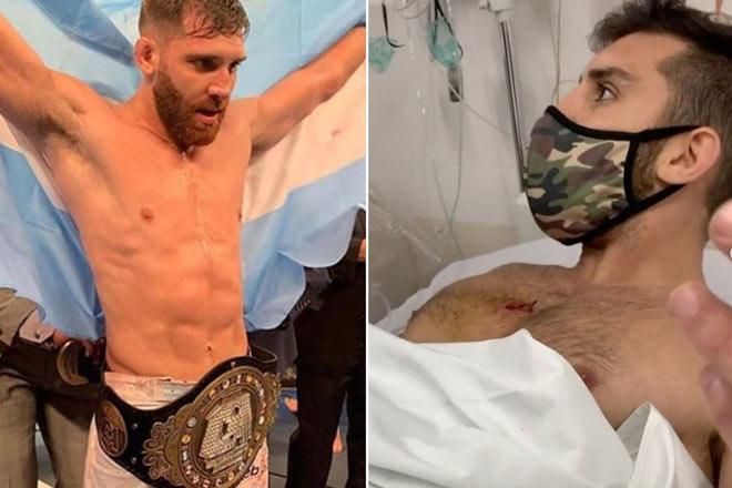 Thoát chết thần kỳ: Võ sỹ UFC bị cướp bắn 2 phát tưởng tan nát cuộc đời - 1