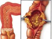 6 dấu hiệu đầu tiên của viêm đại tràng thường bị bỏ qua. Biết sớm để phòng nguy hiểm!