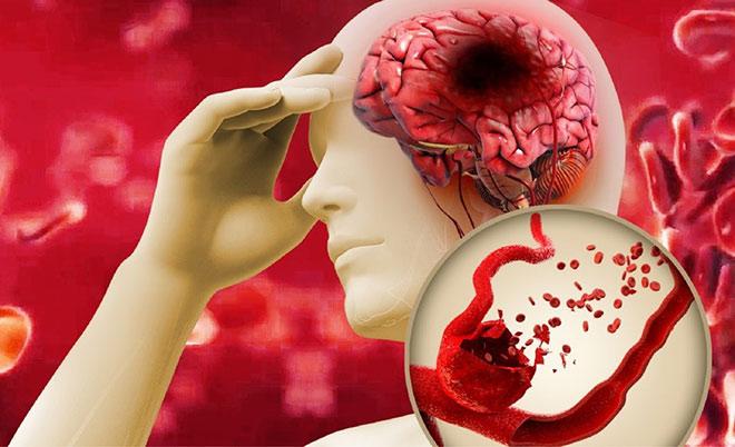 """Mỡ máu tăng cao – """"Sát thủ"""" gây đột quỵ não - 1"""