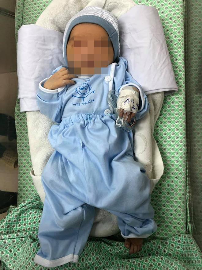 Bé sơ sinh bị bỏ rơi suốt 3 ngày ở hố ga đã tự mở to được mắt - 1