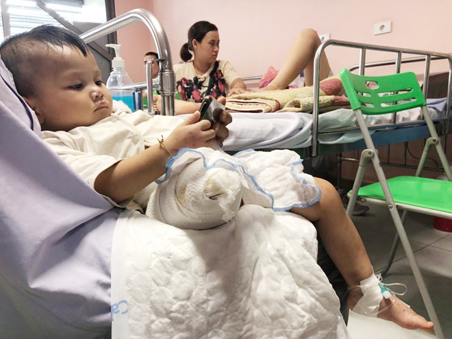 Rớt nước mắt bé 2 tuổi phải cắt bỏ một chân vì tai nạn giao thông - 1