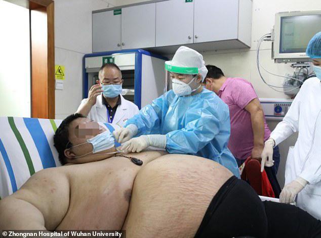 Thanh niên Trung Quốc cấp cứu do tăng 100 kg trong 5 tháng trốn dịch - 1