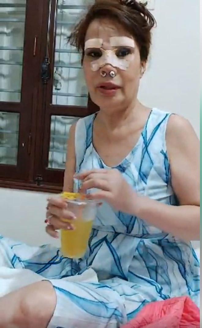 Cô dâu 62 tuổi xuất hiện với diện mạo khác lạ sau hàng loạt ca tân trang nhan sắc - 1
