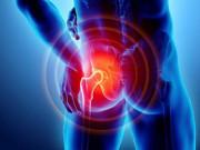 Tin tức sức khỏe - Đau nhức háng, dọc đùi có phải biểu hiện của bệnh nguy hiểm?