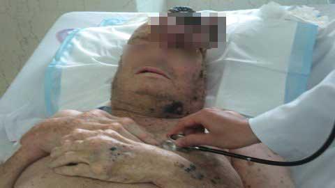 Phẫu thuật khối u nhung nhúc dòi - 1