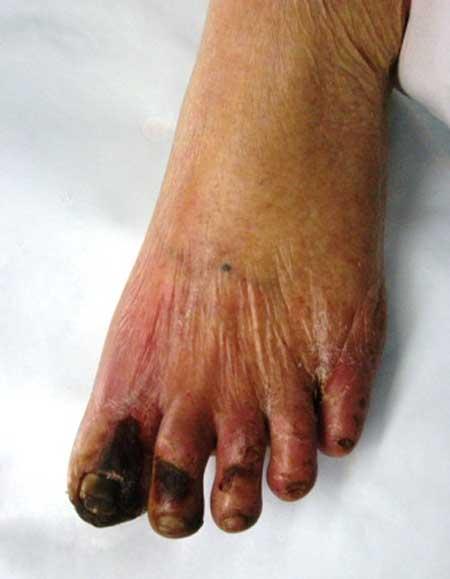 """Sự thực về bệnh """"hai chân chết khô"""" - 1"""