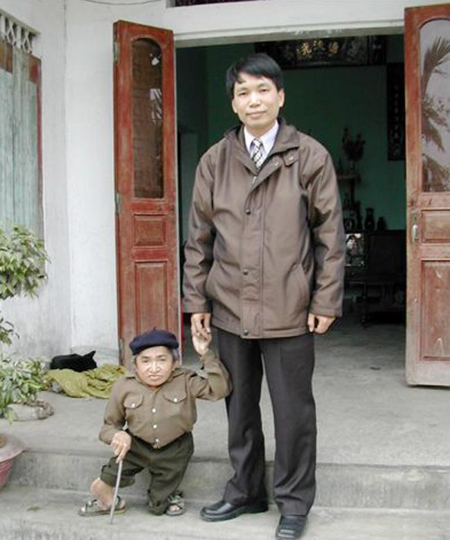Ông Nguyễn Văn Dóm sống tại Hải Phòng chỉ cao 52 cm. Tuy chiều cao bị thấp bé nhưng ông vẫn có nhiều tài lẻ như chơi đàn bầu, kể chuyện hài hước. Đáng tiếc là ông chưa được ghi tên vào sách kỷ lục Guinness dù hiện nay người lùn nhất thế giới cao 54,6 cm, cao hơn ông Dóm 2,6 cm.