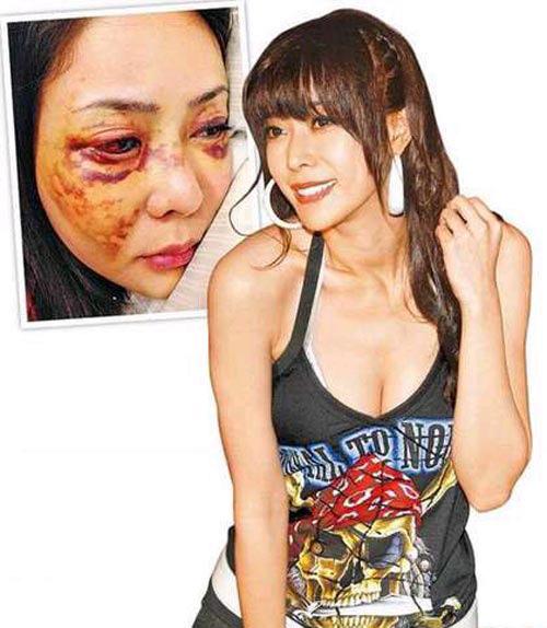 Người mẫu Đài Loan bị bạn trai hành hung - 1