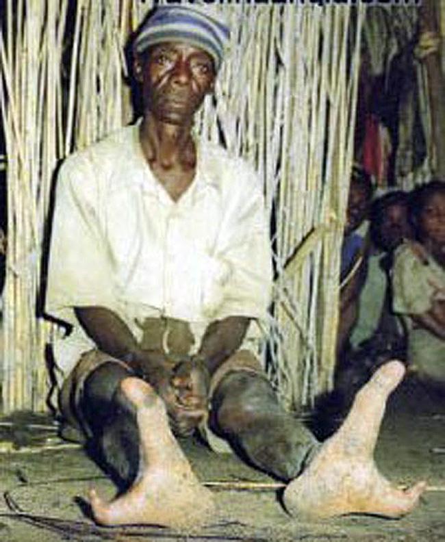 Chính vì vậy, người ta gọi bộ tộc này là bộ tộc tôm hùm.