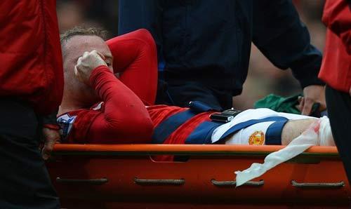 MU mất Rooney 1 tháng: Tái ông thất mã - 1