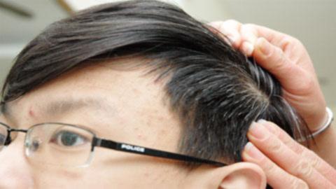 Món ăn bài thuốc chữa chứng tóc bạc sớm - 1