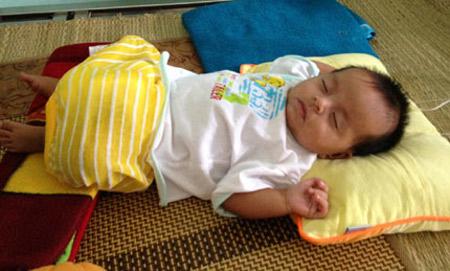 Bé gái 3 tháng tuổi bị biến dạng bộ phận sinh dục - 1