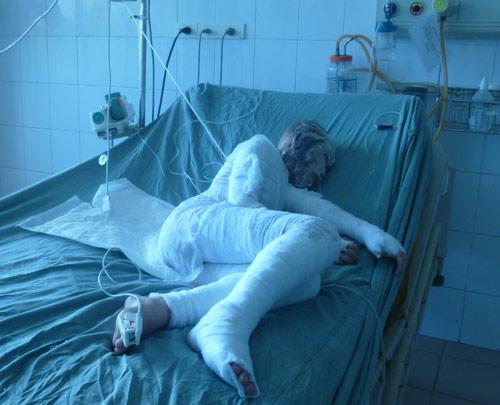 Tạt a xít cả nhà: Tính mạng bé gái bị đe dọa - 1