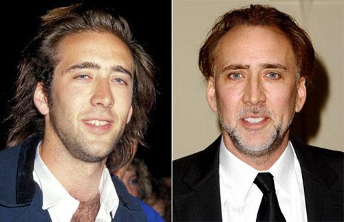 Sao hollywood đổi sắc nhờ chỉnh răng